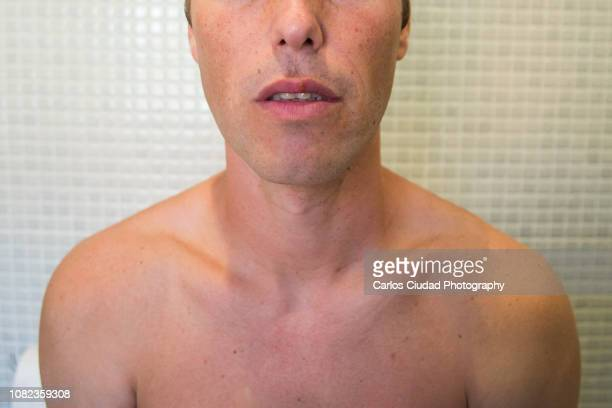 portrait of man face with herpes simplex virus on his lips - bouton de fievre photos et images de collection