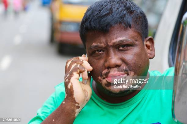 Portrait Of Man Suffering From Vitiligo Talking On Mobile Phone On Street