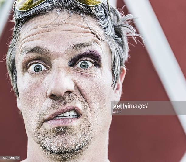 portrait of man with black eye looking at camera pulling face - black eye stock pictures, royalty-free photos & images