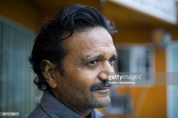 Portrait of motel manager Amit Shah as he stands in ouside his motel Los Angeles California April 24 2015 Visible above his right eybrow are the...