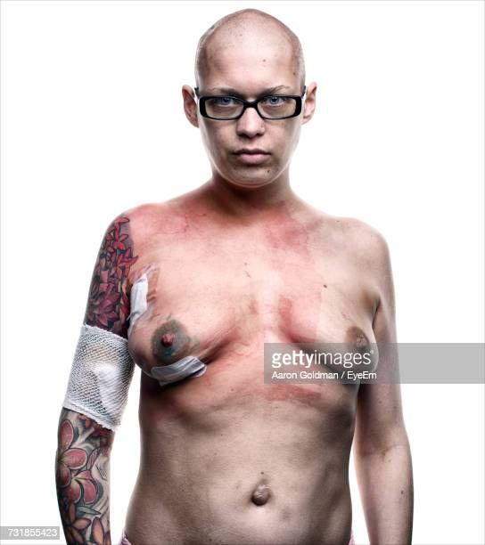 naked woman with breast cancer