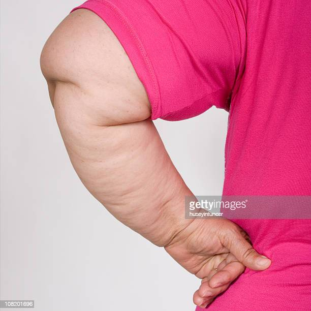 Portrait of Obese Woman's Arm