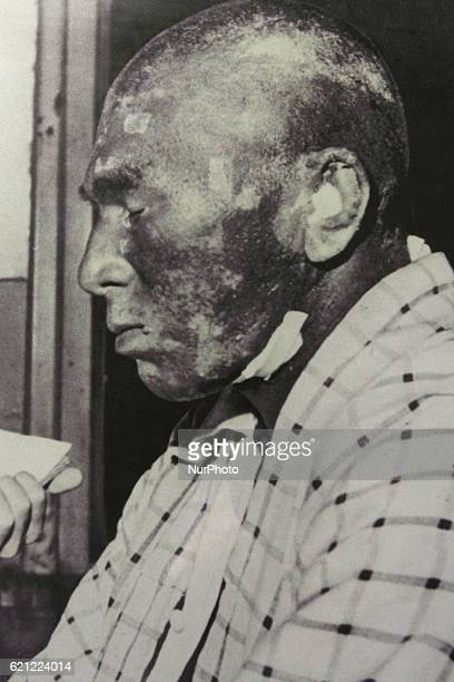 Portrait of one of the crew focusing on the burn and general skin discoloration of the fishing boat DaiGo Fukuryu Maru on display in Tokyo on 5...