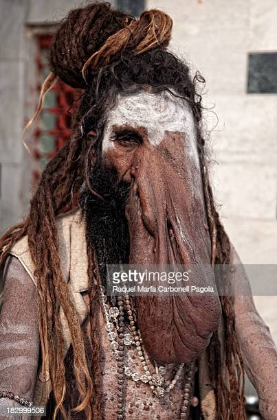 CONTENT] Portrait of sadhu holy man for hinduists suffering elephantiasis Varanasi ghats Benares Uttar Pradesh India
