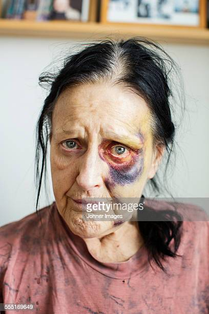 portrait of senior woman with bruises on her face - equimose imagens e fotografias de stock