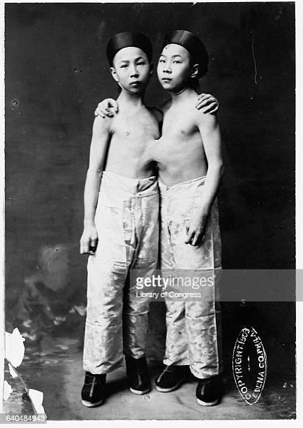 Portrait of Siamese Twins