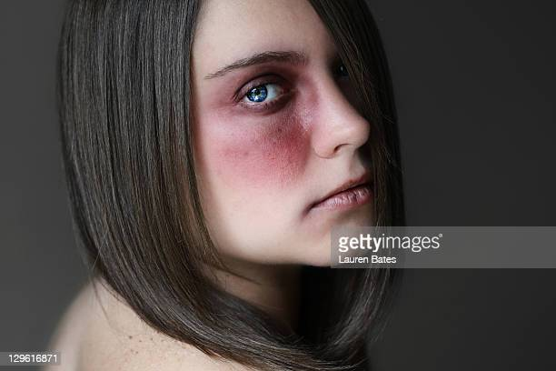 portrait of woman - bruise stock pictures, royalty-free photos & images