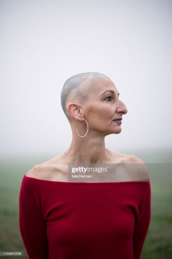 Portrait of woman with alopecia