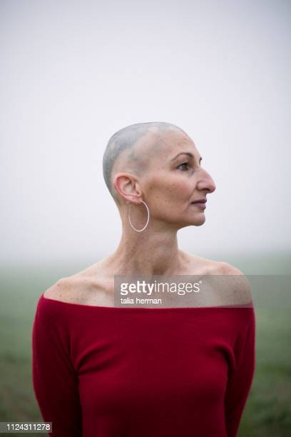portrait of woman with alopecia - showus stock pictures, royalty-free photos & images