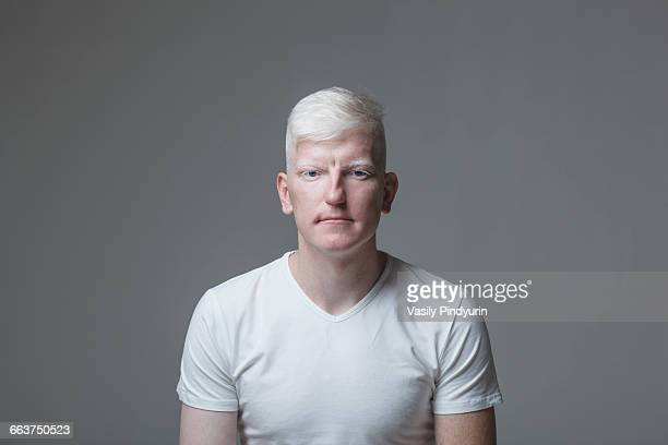 portrait of young albino man against gray background - aço - fotografias e filmes do acervo