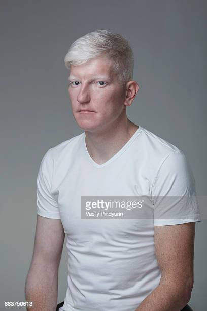 Portrait of young albino man sitting against gray background