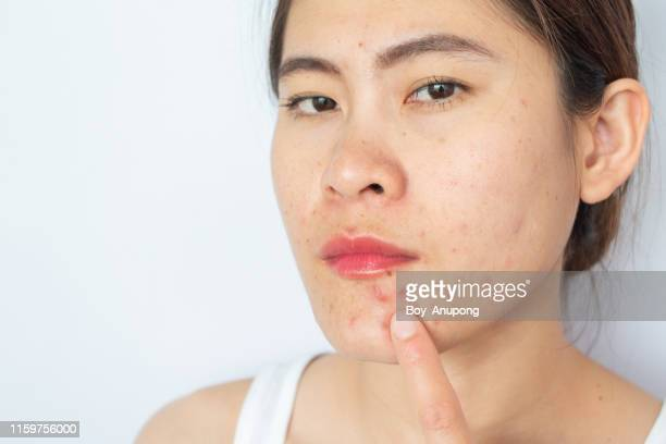 portrait of young asian woman with inflamed acne on her face. - cyst stock pictures, royalty-free photos & images