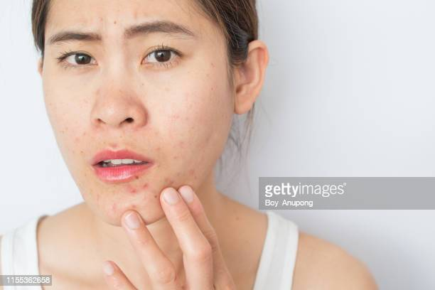 portrait of young asian woman worry and serious with problems of acne inflammation (papule and pustule) on her face. - abscess stock photos and pictures