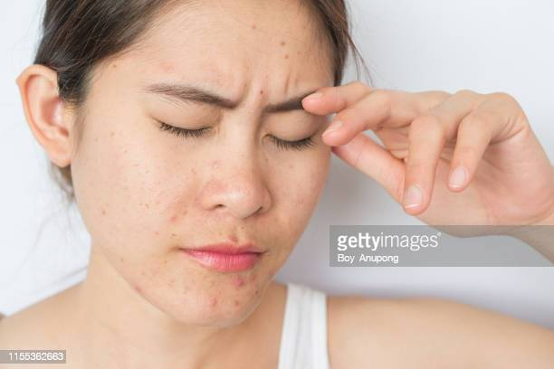 portrait of young asian woman worry and stressed with problems of acne inflammation (papule and pustule) on her face. - abscess stock photos and pictures