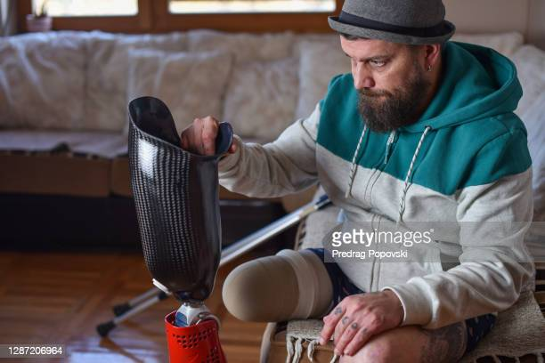 portrait of young man with amputate leg holding his artificial prosthetic leg - physical disability stock pictures, royalty-free photos & images