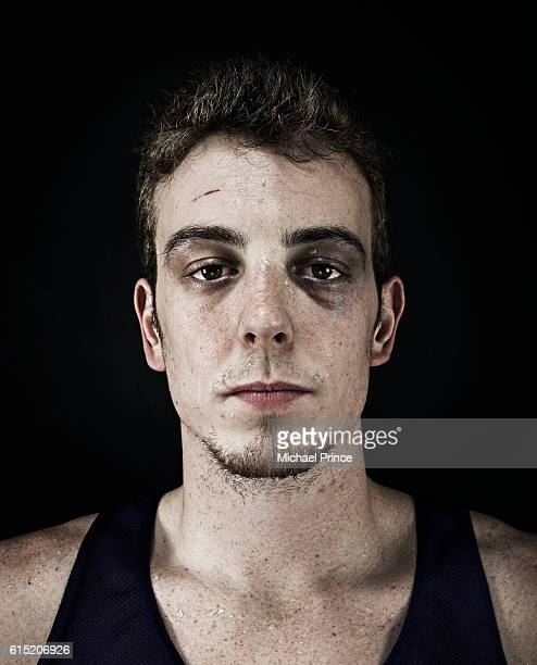 portrait of young man with bruise under eye - black eye stock pictures, royalty-free photos & images
