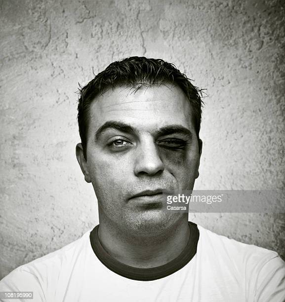 Portrait of Young Man with Bruised, Black Eye