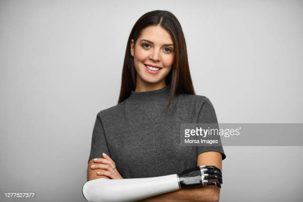 portrait of young smiling disabled businesswoman. - disability stock pictures, royalty-free photos & images