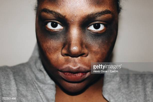 portrait of young woman - bruise stock pictures, royalty-free photos & images
