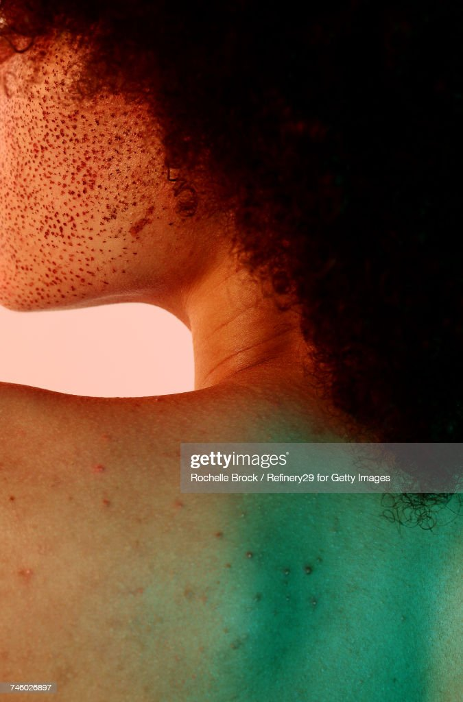 Portrait of Young Womans Back with Freckles and Acne : Stock Photo