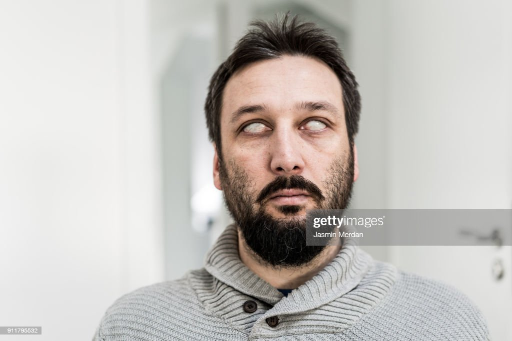 Portrait with blind eyes : Stock Photo