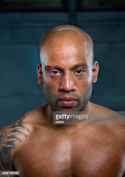 Portret of wounded free fighter after match