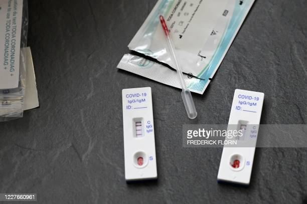 Positive and a negative serological test for COVID-19 are pictured at a pharmacy in Strasbourg, eastern France, on July 15, 2020. - Since July 11,...
