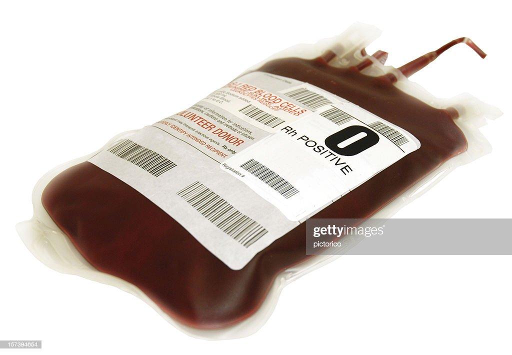 O concentrado de eritrocitos bolsa de sangre positiva : Foto de stock