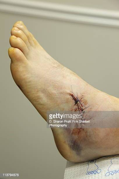 post foot surgery stitches and bruising - suture stock photos and pictures
