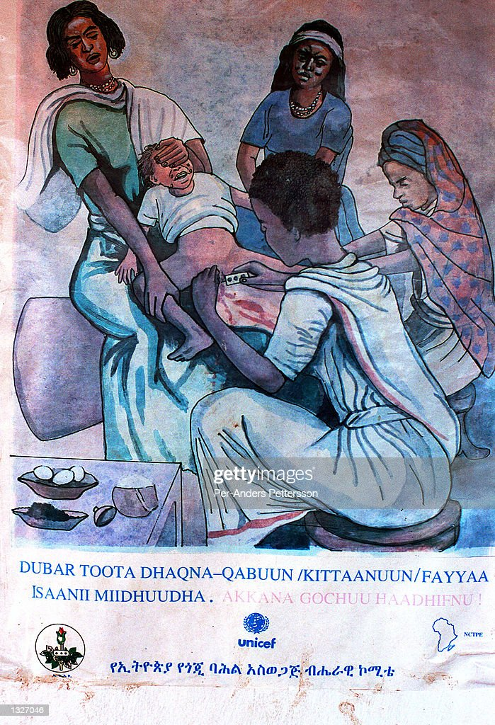 A poster displays information on the dangers of female genital mutilation (FGM) February 6, 2001 at a rural clinic outside Harar, in eastern Ethiopia.