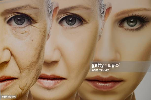 A poster promoting an antiageing treatment is seen on a wall inside the luxury Esteworld Clinic on February 15 2017 in Istanbul Turkey Esteworld...
