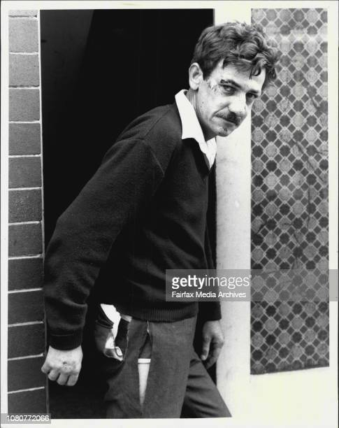 Postman Richard Harris of Enmore his face cut bruised and stitched following an attack by four girls upon him overnight November 01 1985