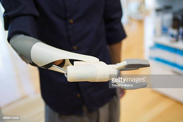 A potential user tenses his muscles to open the pinch mechanism on this 3D printed prosthetic arm on September 21 2015 in Okayama Japan The...