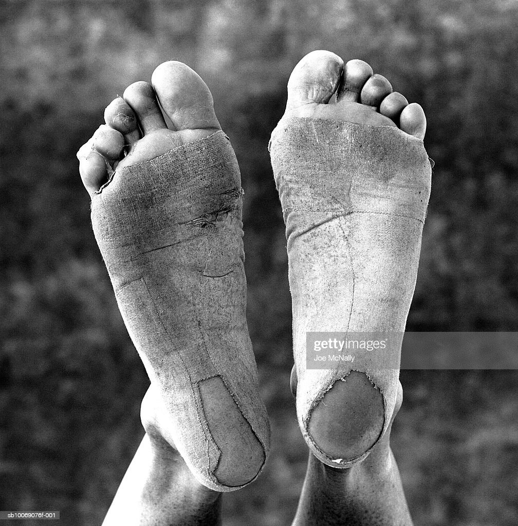 100 pound marathoner, Linda Somers, displays her weathered feet in June of 1996 at a training facility in Atlanta, Georgia. The olympians of ancient greece trained not only to compete but to attain physical abilities that rivaled those of the common man--with the feats achieved during the present day olympics its fair to say little has changed. These athletes train their bodies to machine-like capabilities in order to beat the competition by sometimes only a hundredth of a second. Some have done it with severe heat stroke or even a broken leg.