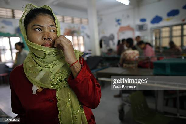 Prak Channa hides her face after getting her stitches out after another skin grafting operation at the Children's Surgical Center hospital July 22...