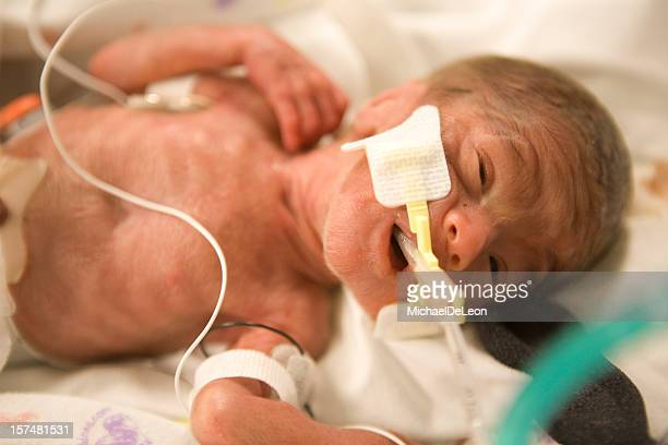 premature baby boy - premature stock pictures, royalty-free photos & images