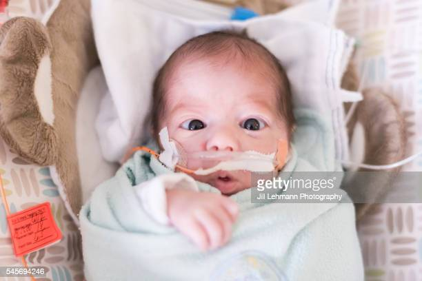 premature baby in nicu - premature stock pictures, royalty-free photos & images