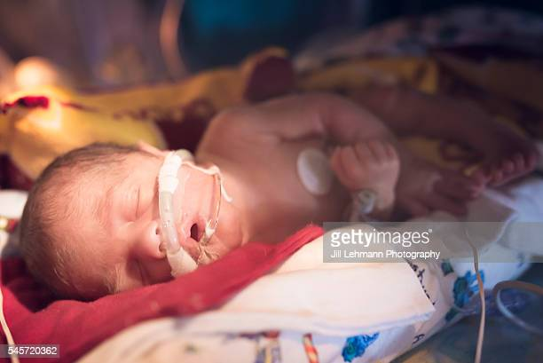 premature baby in nicu sleeps in his isolette - hospital ventilator stock pictures, royalty-free photos & images
