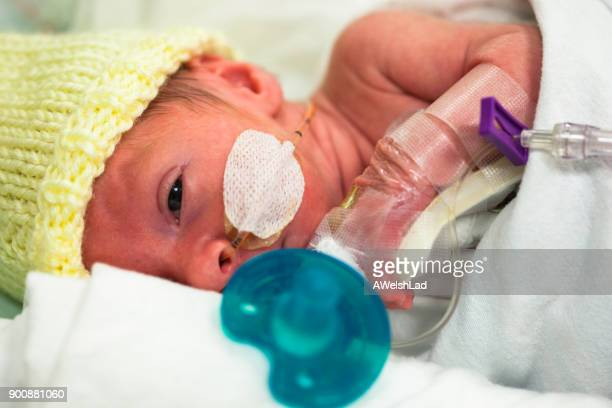 Premature baby in the neonatal intensive care unit with a pacifier
