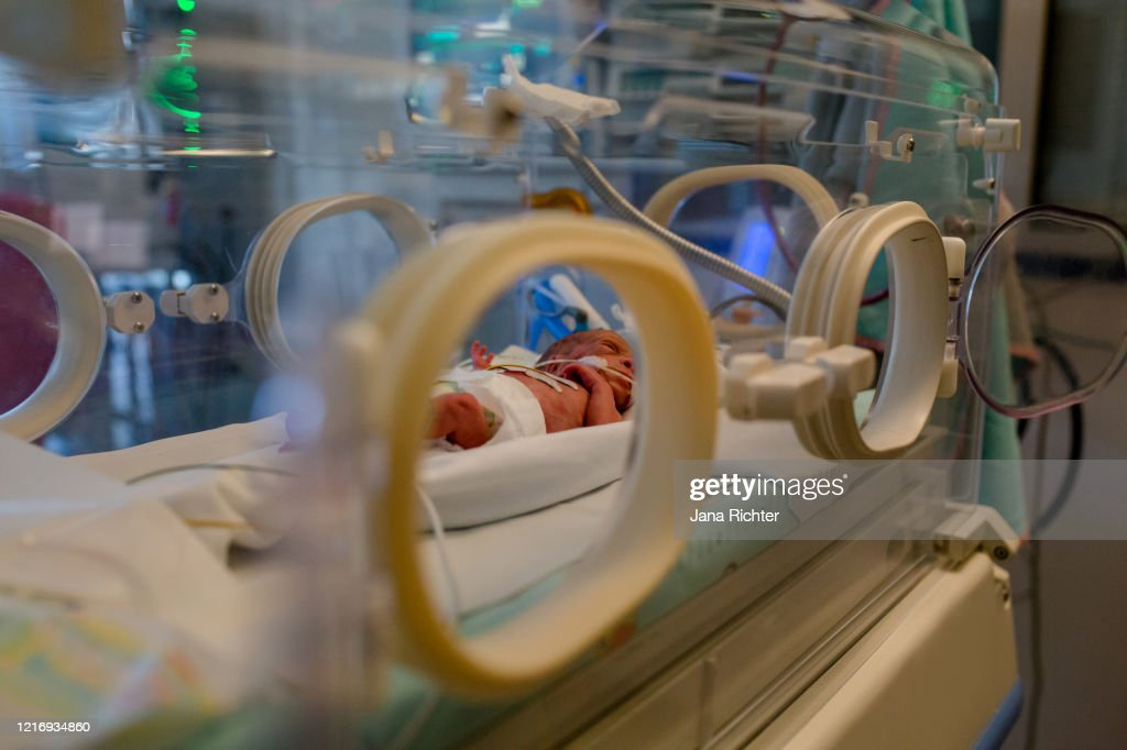 premature baby lies in the incubator : Stock Photo