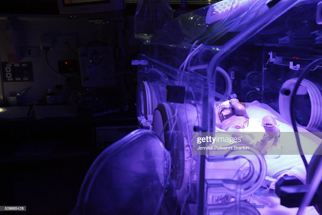 Premature newborn baby Alexander having Phototherapy in humidicrib in the Neonatal Intensive Care Unit at Royal Prince Alfred Hospital on May 20, 2015 in Sydney, Australia. The Neonatal care unit at Westmead Children's Hospital specialized in specialy care for newborns.