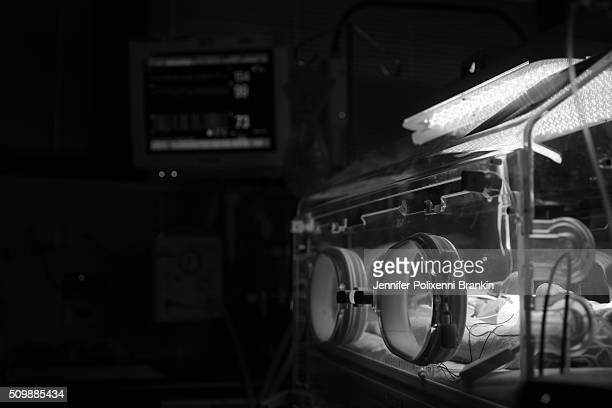 Premature newborn baby Alexander is in the NICU on May 18 2015 in Sydney Australia The Neonatal care unit at Westmead Children's Hospital specialized...