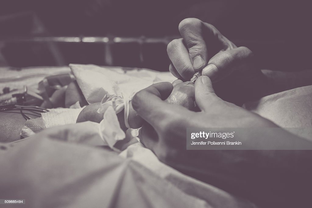 Premature newborn baby in the Neonatal Intesive Care Unit on June 12, 2015 in Sydney, Australia. The Neonatal care unit at Westmead Children's Hospital specialized in specialy care for newborns.