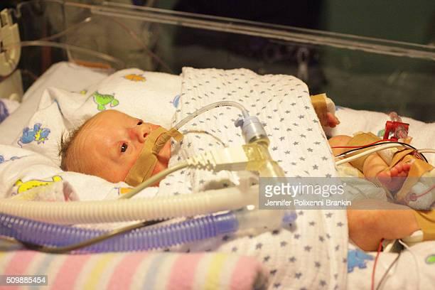 Premature newborn baby intubated in the Neonatal Intesive Care Unit on June 13 2015 in Sydney Australia The Neonatal care unit at Westmead Children's...
