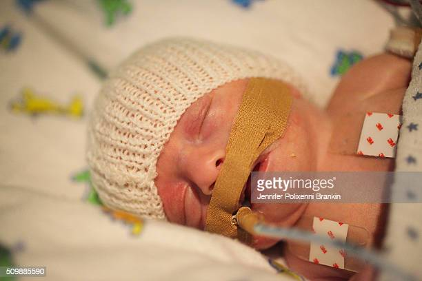 Premature newborn baby intubated in the Neonatal Intesive Care Unit on June 12 2015 in Sydney Australia The Neonatal care unit at Westmead Children's...
