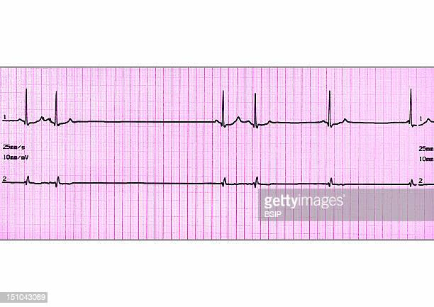 Premature Ventricular Contraction Is A Form Of Irregular Heartbeat In Which The Ventricle Contracts Prematurely Pvcs Are Followed By A Compensatory...