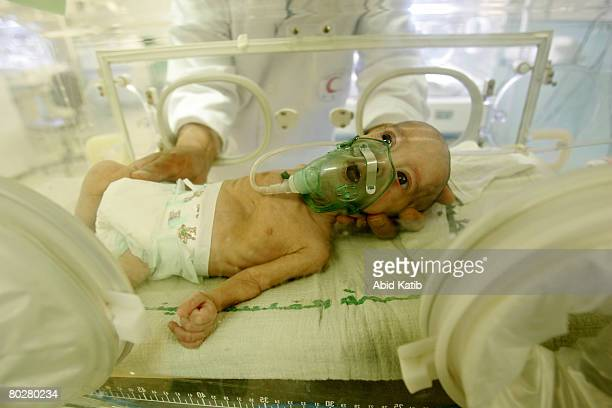 A prematurity Palestinian new born baby Ahmad Ali who suffers from the brain damage caused by birth asphyxia is cared for by paediatric Dr Nasser...