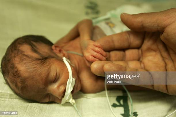 A prematurity Palestinian new born baby is cared by pediatric Dr Nasser AlSadi at the prematurity department at the AlShifa hospital March 17 2008 in...