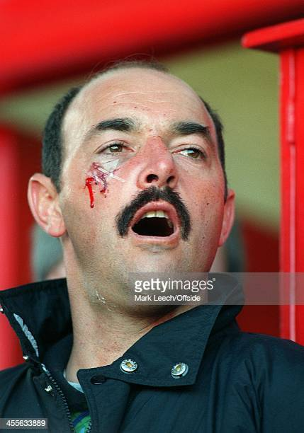 Premiership Football Southampton v Everton Bruce Grobbelaar sits in the dugout with stitches to a cut on his cheek