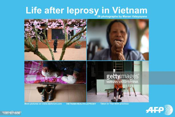 AFP presents a photoessay of 26 images by photographer Manan Vatsyayana of patients living at the Van Mon Leprosy hospice in Thai Binh province At...